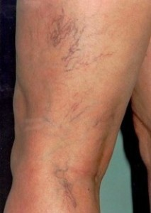 Sclerotherapy-before-370422