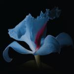 syneron iris