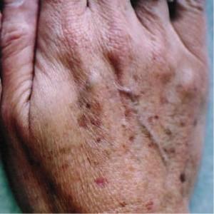 hand pigment pre