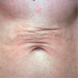 sublime abdomen post