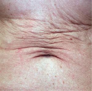 sublime abdomen pre